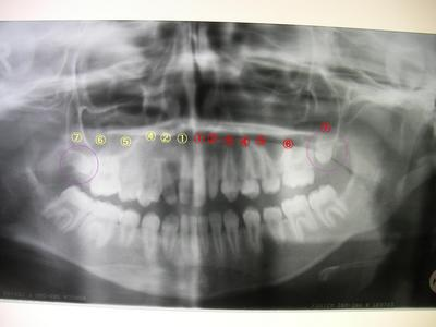x-ray(teeth).JPG